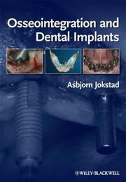 Jokstad, Asbjorn - Osseointegration and Dental Implants, ebook