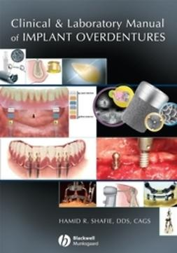 Shafie, Hamid R. - Clinical and Laboratory Manual of Implant Overdentures, ebook