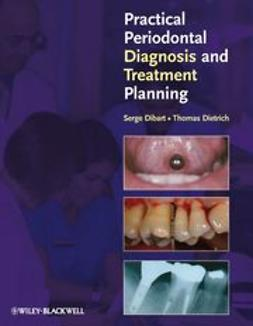Dibart, Serge - Practical Periodontal Diagnosis and Treatment Planning, e-bok