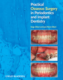 Dibart, Jean-Pierre - Practical Osseous Surgery in Periodontics and Implant Dentistry, ebook