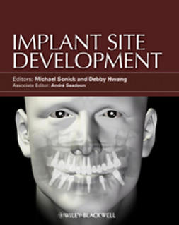 Sonick, Michael - Implant Site Development, ebook