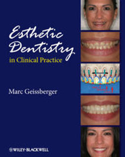 Geissberger, Marc - Esthetic Dentistry in Clinical Practice, e-bok