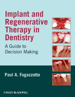 Fugazzotto, Paul A. - Implant and Regenerative Therapy in Dentistry: A Guide to Decision Making, ebook