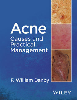 Danby, F. William - Acne: Causes and Practical Management, e-bok
