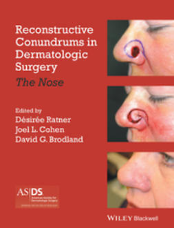 Ratner, Desiree S. - Reconstructive Conundrums in Dermatology: The Nose, ebook
