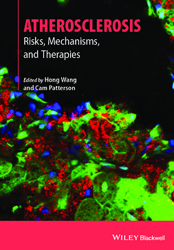 Patterson, Cam - Atherosclerosis: Risks, Mechanisms, and Therapies, ebook