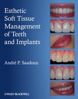 Saadoun, Andre P. - Esthetic Soft Tissue Management of Teeth and Implants, ebook