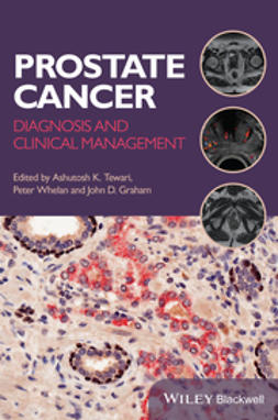 Whelan, Peter - Prostate Cancer: Diagnosis and Clinical Management, e-kirja