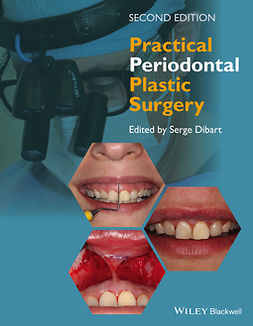 Dibart, Serge - Practical Periodontal Plastic Surgery, ebook