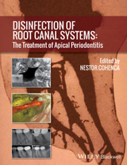 Cohenca, Nestor - Disinfection of Root Canal Systems: The Treatment of Apical Periodontitis, ebook