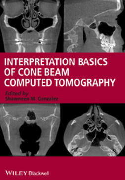 Gonzalez, Shawneen M. - Interpretation Basics of Cone Beam Computed Tomography, e-bok