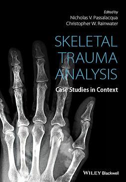 Passalacqua, Nicholas V. - Skeletal Trauma Analysis: Case Studies in Context, e-kirja