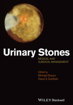 Grasso, Michael - Urinary Stones: Medical and Surgical Management, ebook