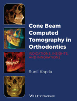 Kapila, Sunil - Cone Beam Computed Tomography in Orthodontics: Indications, Insights, and Innovations, ebook