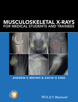 Brown, Andrew - Musculoskeletal X-Rays for Medical Students and Trainees, e-bok