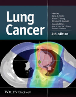 Roth, Jack A. - Lung Cancer, e-kirja
