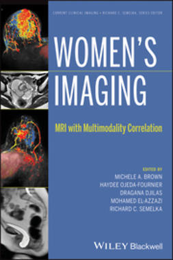 Brown, Michele A. - Women's Imaging: MRI with Multimodality Correlation, e-bok