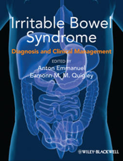 Emmanuel, Anton - Irritable Bowel Syndrome: Diagnosis and Clinical Management, e-bok