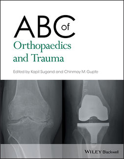 Gupte, Chinmay M. - ABC of Orthopaedics and Trauma, e-kirja