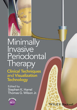Harrel, Stephen K. - Minimally Invasive Periodontal Therapy: Clinical Techniques and Visualization Technology, ebook