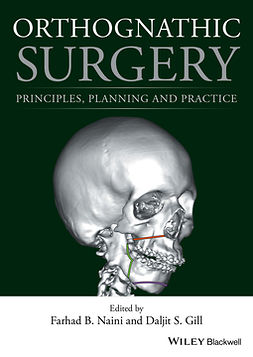 Gill, Daljit S. - Orthognathic Surgery: Principles, Planning and Practice, ebook