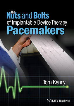 Kenny, Tom - The Nuts and Bolts of Implantable Device Therapy: Pacemakers, ebook