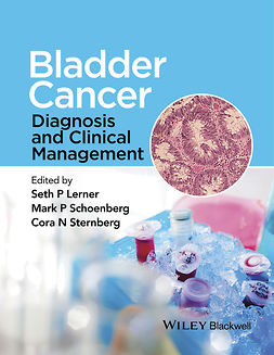 Lerner, Seth - Bladder Cancer: Diagnosis and Clinical Management, e-kirja