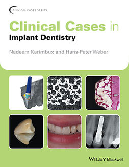 Karimbux, Nadeem - Clinical Cases in Implant Dentistry, ebook
