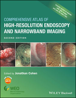 Cohen, Jonathan - Comprehensive Atlas of High Resolution Endoscopy and Narrowband Imaging, ebook