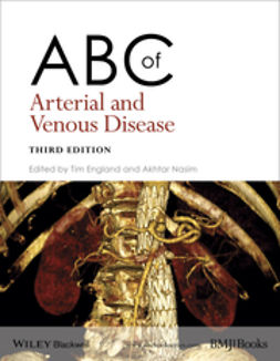 England, Tim - ABC of Arterial and Venous Disease, e-bok