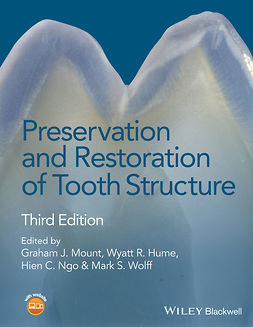 Hume, Wyatt R. - Preservation and Restoration of Tooth Structure, ebook