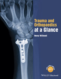 Willmott, Henry - Trauma and Orthopaedics at a Glance, e-bok