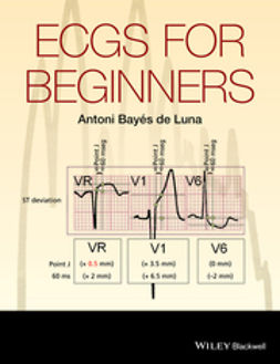 Luna, Antoni Bayés de - ECGs for Beginners, ebook