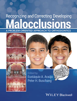 Araújo, Eustáquio A. - Recognizing and Correcting Developing Malocclusions: A Problem-Oriented Approach to Orthodontics, ebook