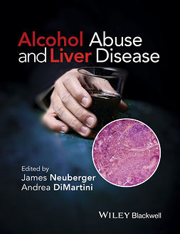 DiMartini, Andrea - Alcohol Abuse and Liver Disease, e-kirja