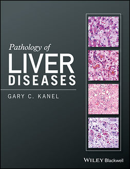 Kanel, Gary C. - Pathology of Liver Diseases, ebook