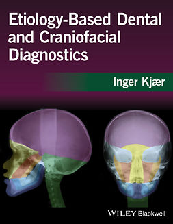 Kjaer, Inger - Etiology-Based Dental and Craniofacial Diagnostics, ebook