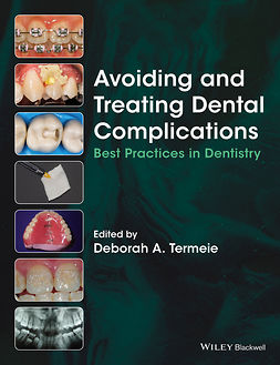 Termeie, Deborah - Avoiding and Treating Dental Complications: Best Practices in Dentistry, ebook