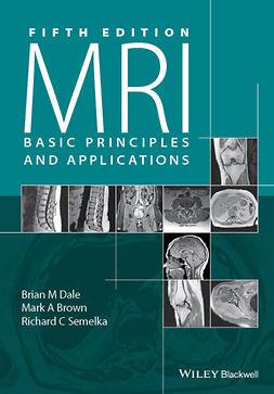 Brown, Mark A. - MRI: Basic Principles and Applications, e-bok