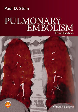 Stein, Paul D. - Pulmonary Embolism, ebook