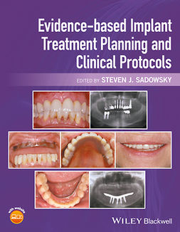 Sadowsky, Steven J. - Evidence-based Implant Treatment Planning and Clinical Protocols, ebook