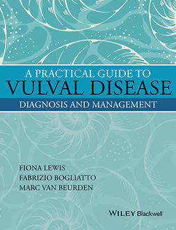Beurden, Marc van - A Practical Guide to Vulval Disease: Diagnosis and Management, e-kirja
