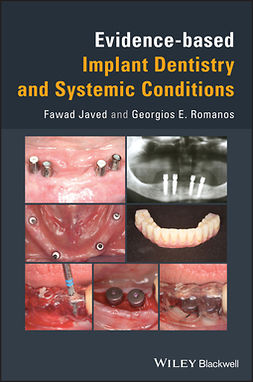 Romanos, Georgios E. - Evidence-based Implant Dentistry and Systemic Conditions, ebook