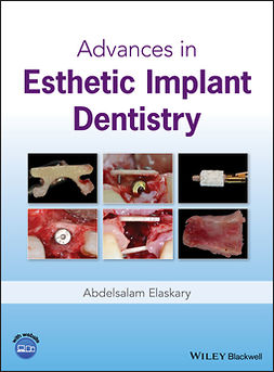 Elaskary, Abdelsalam - Advances in Esthetic Implant Dentistry, e-bok