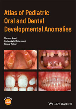 Ansari, Ghassem - Atlas of Pediatric Oral and Dental Developmental Anomalies, ebook