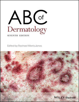 Morris-Jones, Rachael - ABC of Dermatology, e-kirja