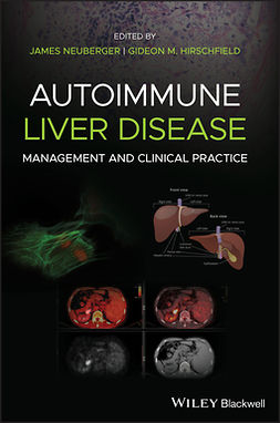 Hirschfield, Gideon M. - Autoimmune Liver Disease: Management and Clinical Practice, ebook