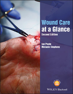Peate, Ian - Wound Care at a Glance, e-bok