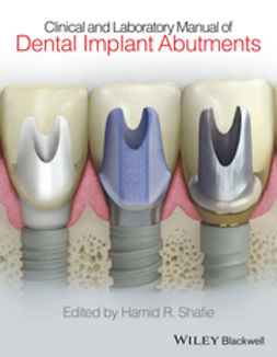 Shafie, Hamid R. - Clinical and Laboratory Manual of Dental Implant Abutments, ebook