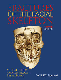 Banks, Peter - Fractures of the Facial Skeleton, e-kirja